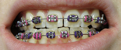 Orthobraces_-_dental_braces_lower_upper_jaw