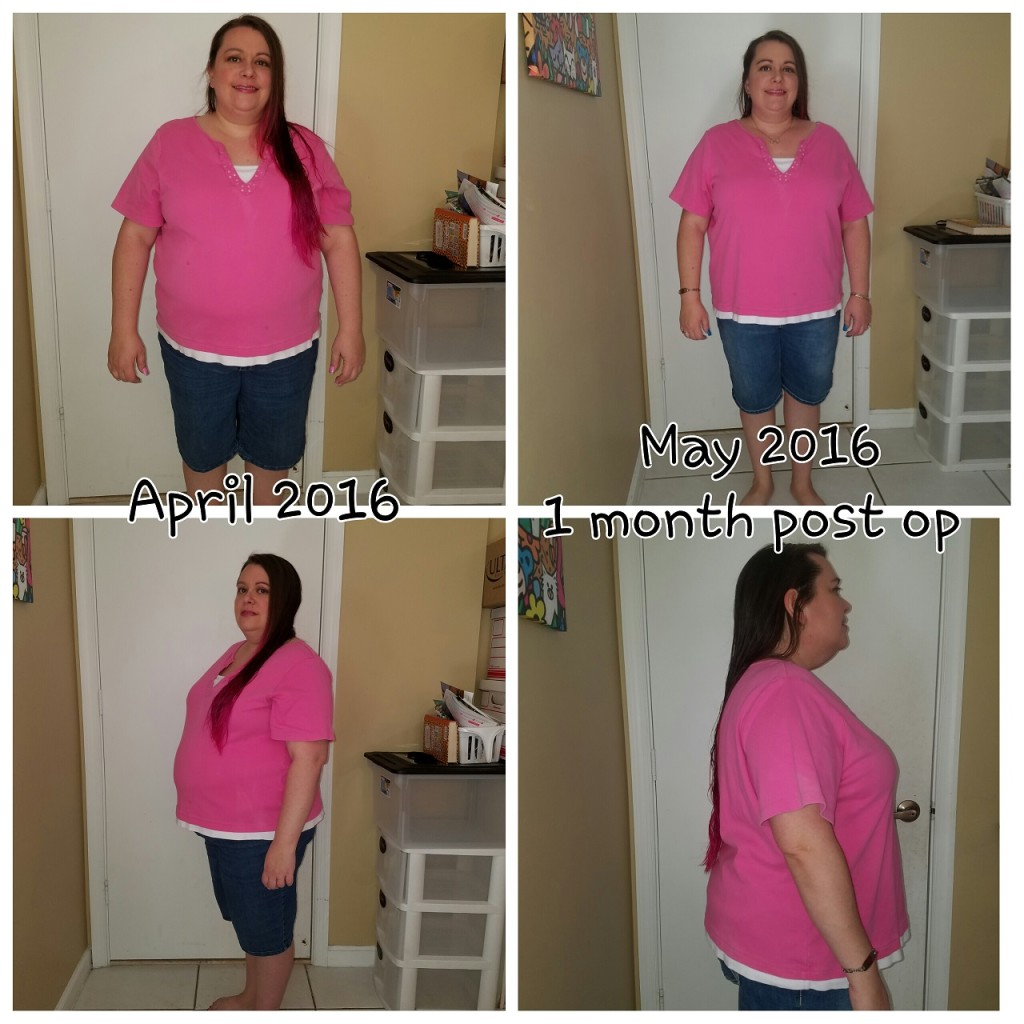 5 month weight loss surgery